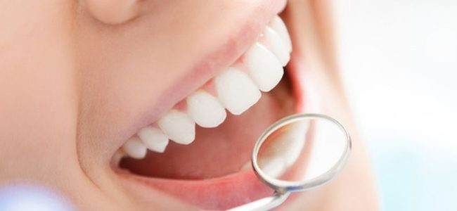 Inilah Tips Menjaga Kesehatan Gigi